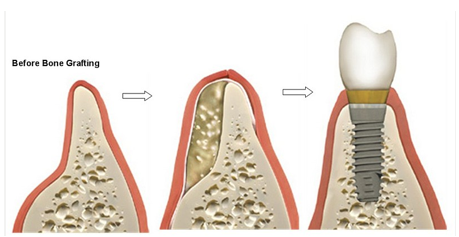 Augumentacija kosti