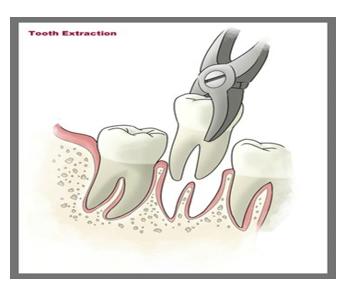 Ekstrakcija zuba